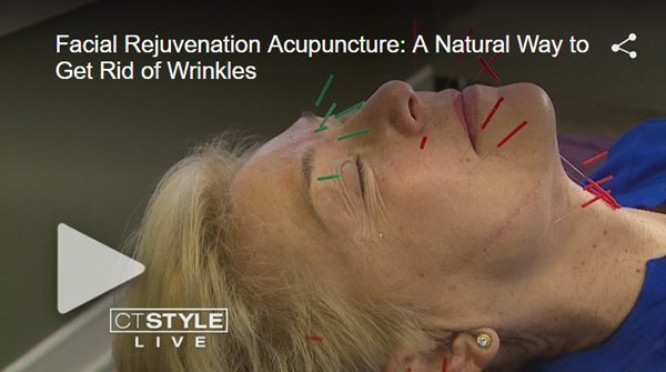 Facial Rejuvenation news report